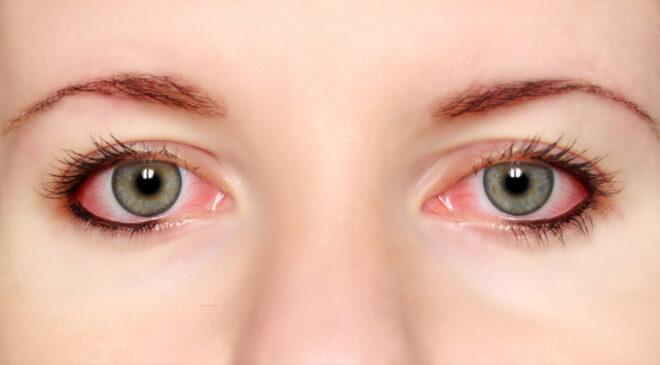 Eyes Problems