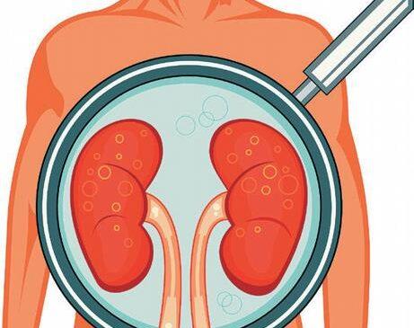 Kidney Detox